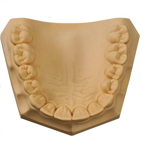 Gypsum Dental Stone Yellow 5Kg / 25kg