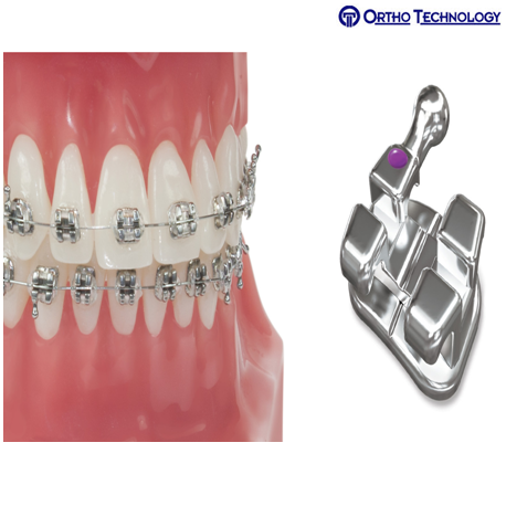 Ortho Technology Pinnacle Stainless Steel Brackets MBT .022-(10 Brackets/ Pack)