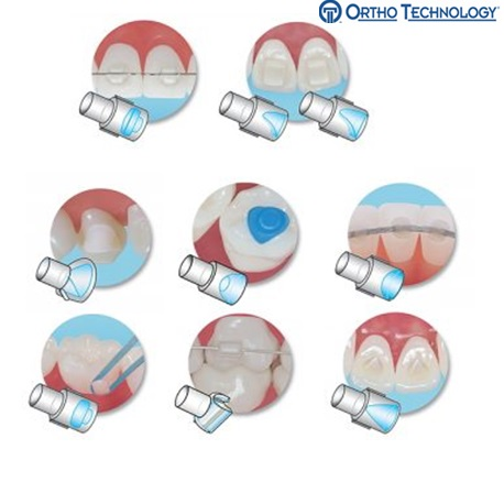 Mini-Mold Tips With 1 Handle For Orthodontic Treatment
