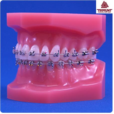 Patient Education Model For Orthodontics