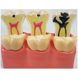 Study Model Showing Progression of Caries
