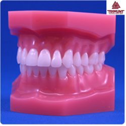 Patient Education Model For Malocclusion