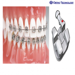 Ortho Technology Marquis Brackets 10 Pack MBT