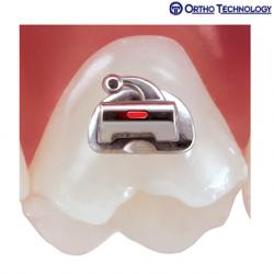 Otho Technology TruCast Bondable Buccal Tubes-(10 Brackets/ Pack)