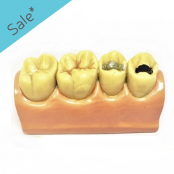 Study Model 4 teeth