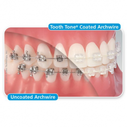 Tooth Tone Coated Stainless Steel Full Form Archwire Rectangle