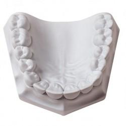 Orthodontic Stone, Super White (22 Kg)