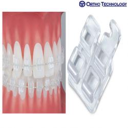 Ortho Technology Pure Brackets 022- MBT (10 Brackets/ Pack)