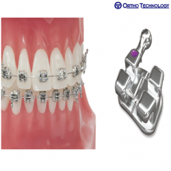 Ortho Technology Votion Metal Brackets Roth Rx. (10 Brackets/ Pack)