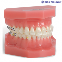 Ortho Technology OrthoFlex Typodonts