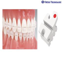 Ortho Technology Ortho Flex Roth RX (10 Brackets/ Pack)