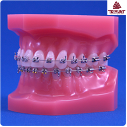Patient Education Anatomical Teeth Model