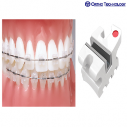 Ortho Technology Encore Roth RX (10 Brackets/Pack)